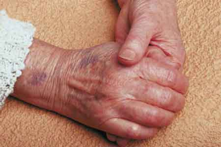 Hematomas Causas Frecuentes aparición