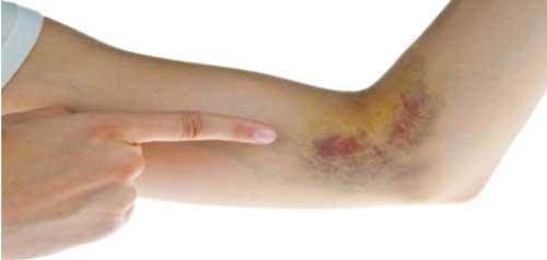 Hematomas Cremas y Otros Tratamientos