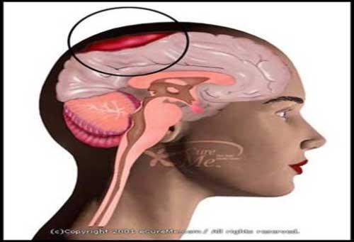Prevención Hematomas Subdurales