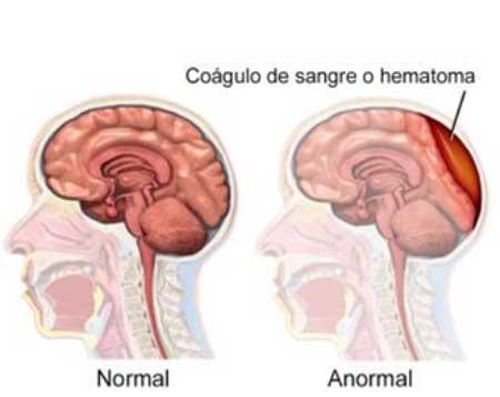 Sintomas Hematomas Cerebrales