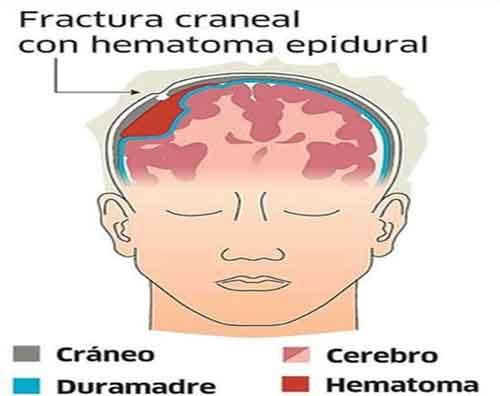 Tipos Hematomas Craneales