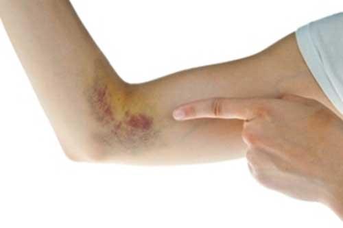 Todo acerca de los Hematomas intramusculares