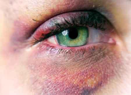 Todo acerca de los Hematomas en los Ojos