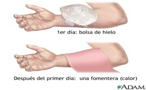 Tratamientos para Hematomas Cremas